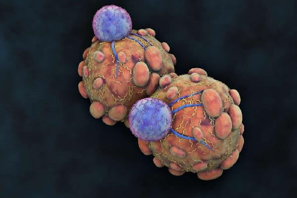 Типичное аутоиммунное заболевание в клеточном виде