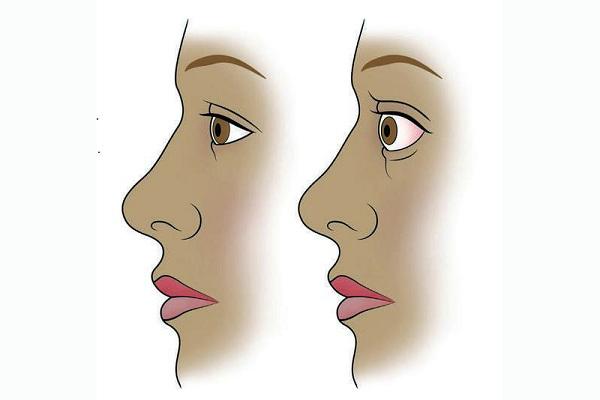 Визуализация болезни Грейвса