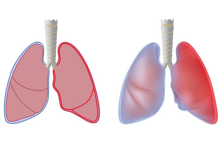 Развитие плеврита легких