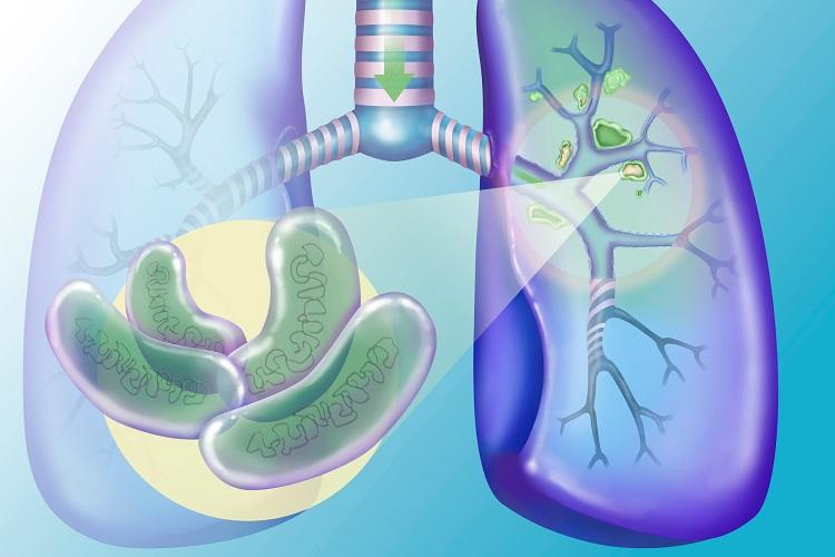 Визуализация туберкулеза